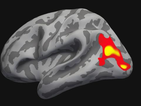 Zurich: la psychothérapie modifie le cerveau
