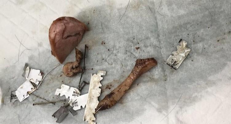 Appâts empoisonnés: trois chiens meurent à Rohrbach (BE)