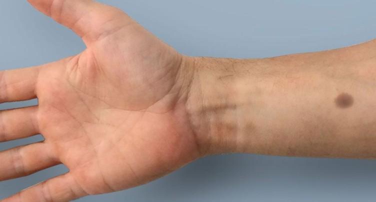 Zurich: un « tatouage biomédical » pour détecter le cancer