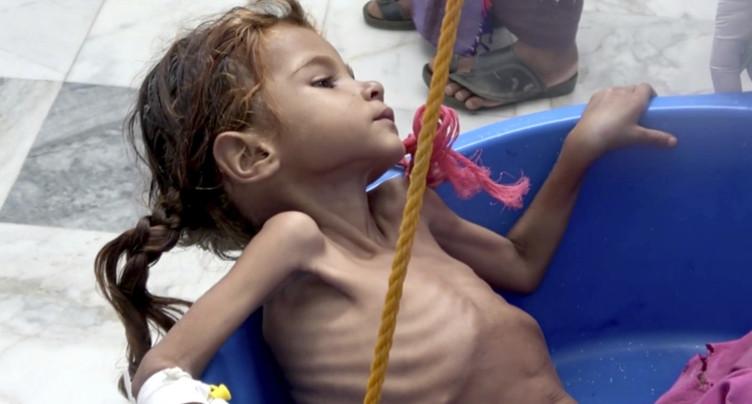 L'ONU dit perdre « le combat contre la famine » au Yémen