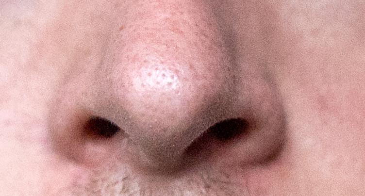 Excellent pronostic de récupération de l'odorat un an après