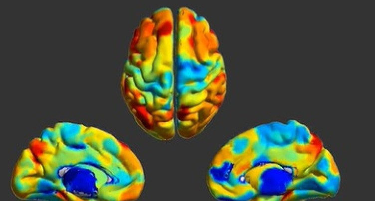 EPFL: chaque cerveau possède sa propre empreinte