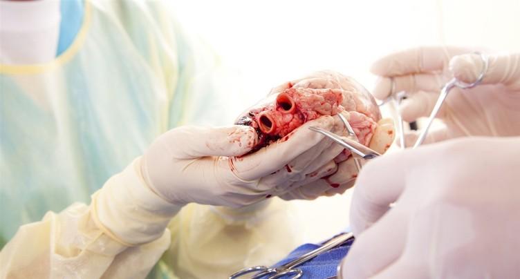 Don d'organes : la Suisse à la traîne