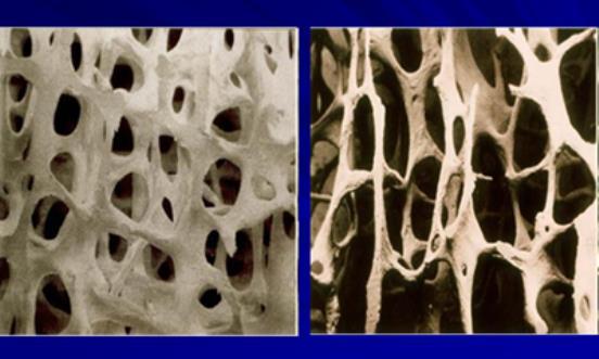 L'ostéoporose, une maladie sournoise - RFJ votre radio régionale